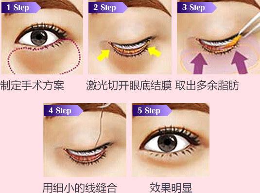 手术过程2