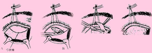 手术过程3