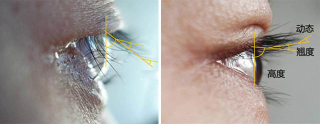 术前眼部设计