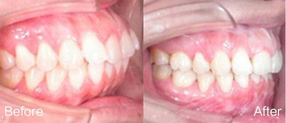 歪牙矫正5