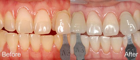 牙齿美白2