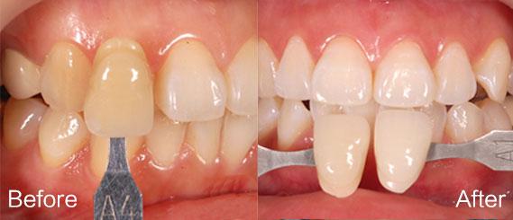 牙齿美白7