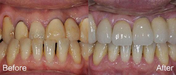 牙齿美白12