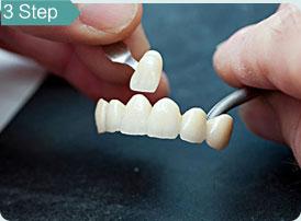 牙齿美白15