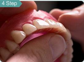 牙齿美白16