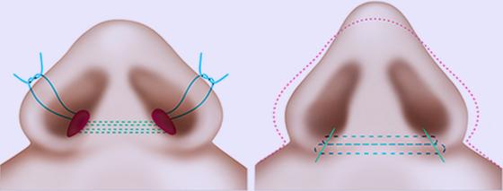 鼻翼类型2