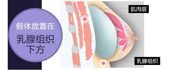 传统的单平面隆胸方法