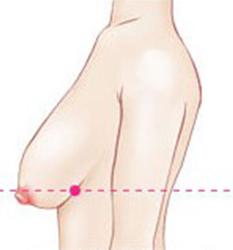 胸部中度下垂形态
