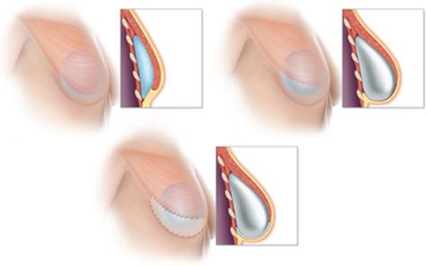 乳假体房再造手术