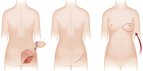 臀部组织乳房再造