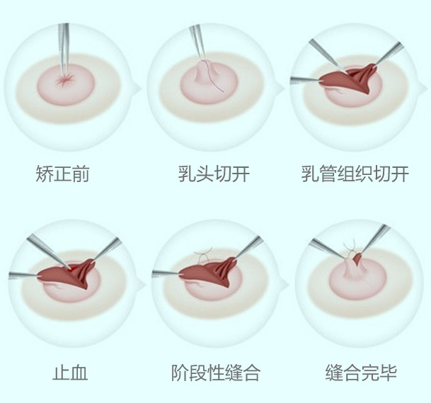 重度乳头内陷矫正方法