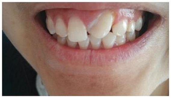 歪牙矫正2