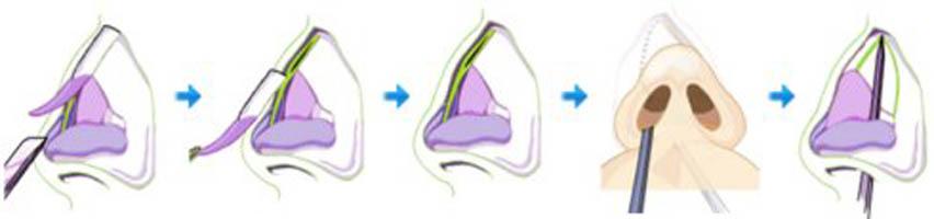 手术方法1