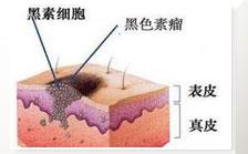 长痣的危害皮肤病变