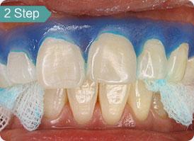 牙齿美白4