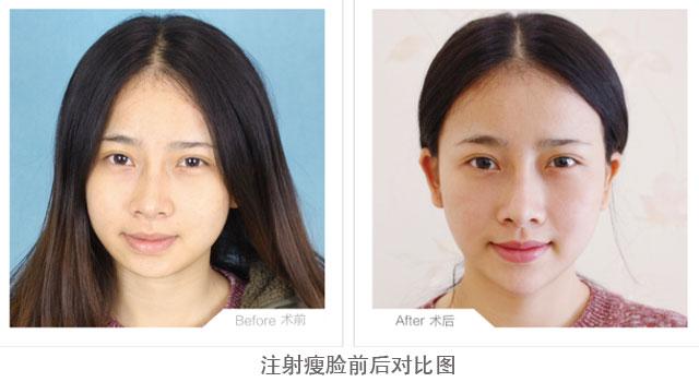 注射瘦脸前后对比图